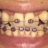 フィリピンで歯科矯正その13 歯が外側に広がってきました